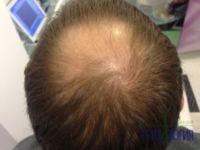 Заболявания на косата: косопад и алопеция